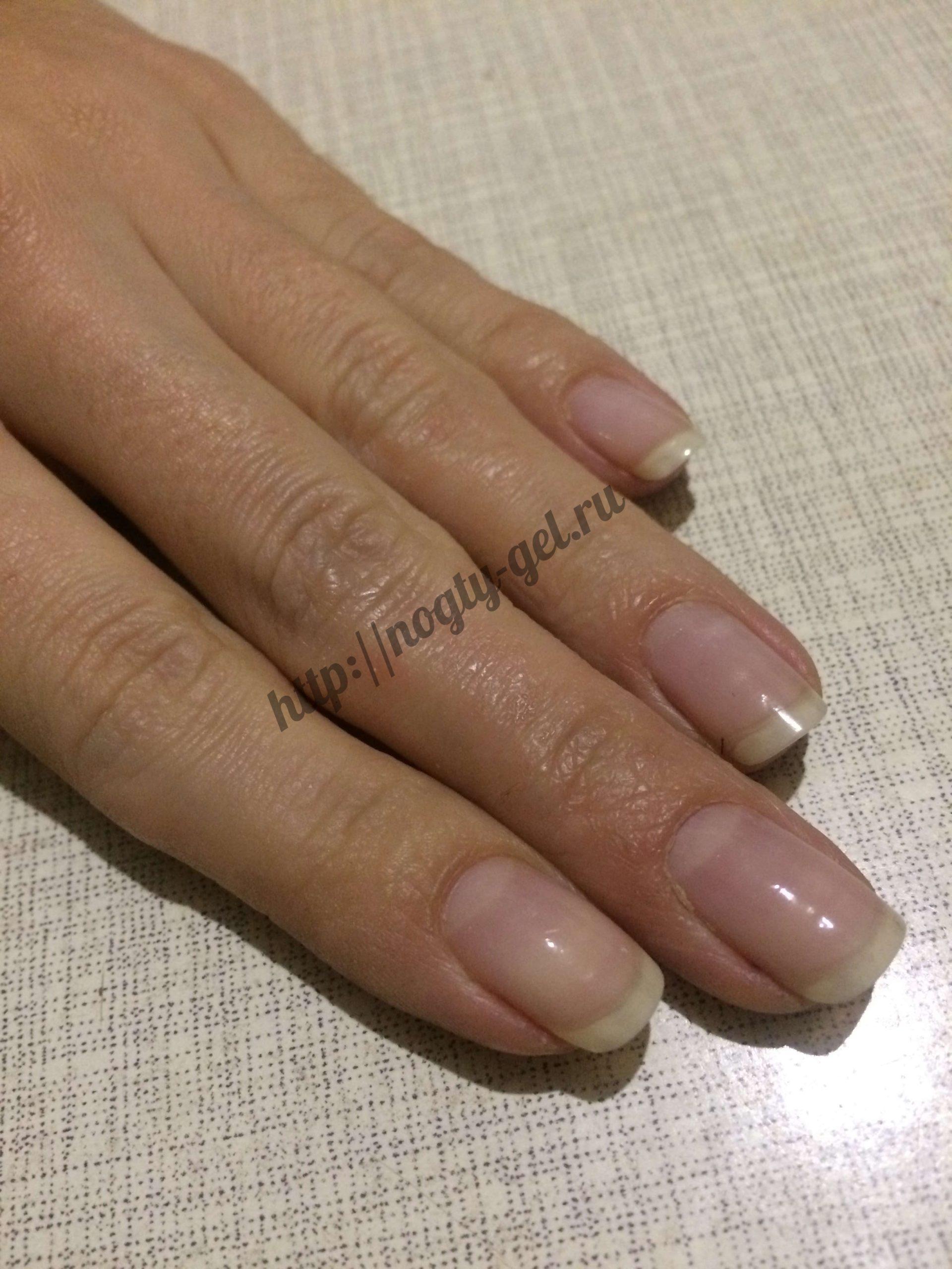 1.как вылечить ногти после гель лака?