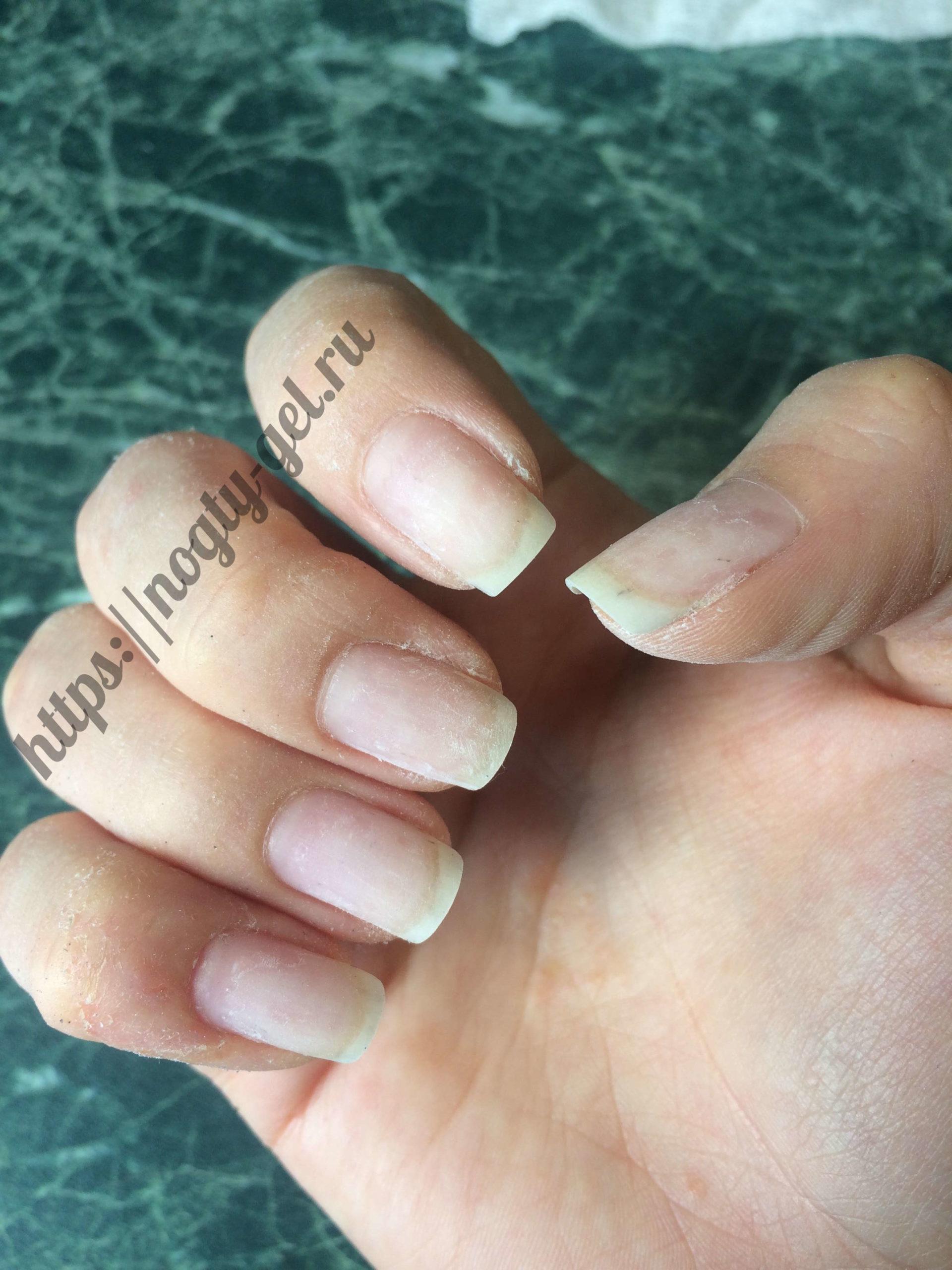 1.ногти после снятия гель лака.